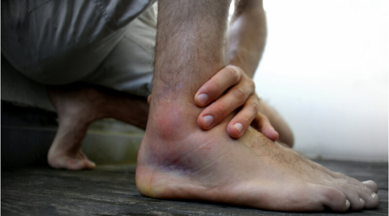 How to Heal Swollen Feet and Ankles