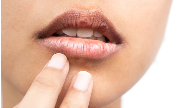 How to Heal a Dry Mouth