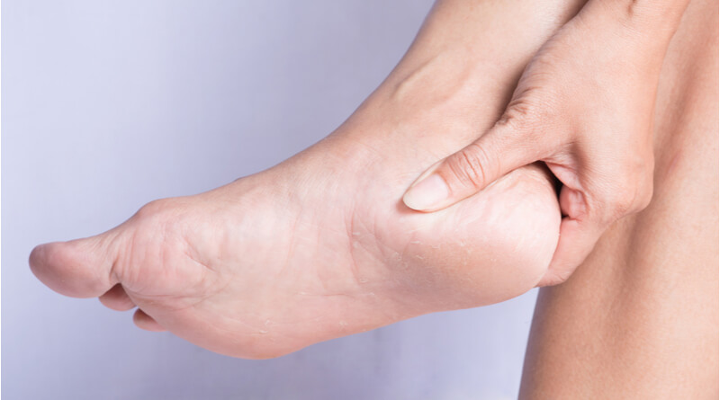 How to treat cracked heels