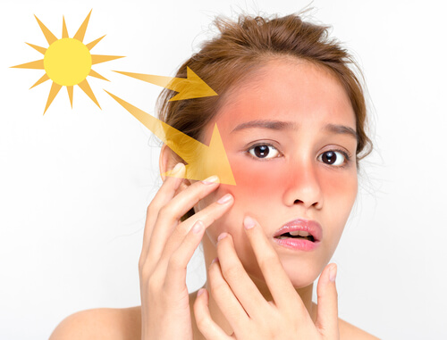Remedies for Treating Sunburn